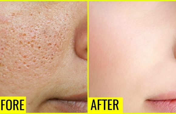 How to Get Rid of Large OPEN PORES Permanently